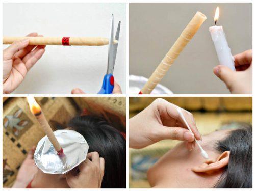 Пошаговое использование фитосвечи для очищения ушей